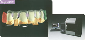 メタルフリー修復システム画像